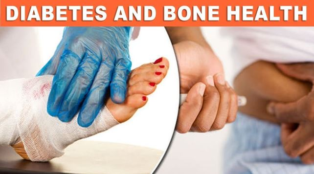 Impact of Diabetes In Bone Health